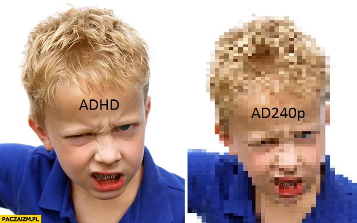 ADHD AD240p
