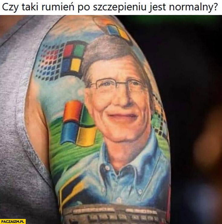 Czy taki rumień po szczepieniu jest normalny? Tatuaż Bill Gates windows