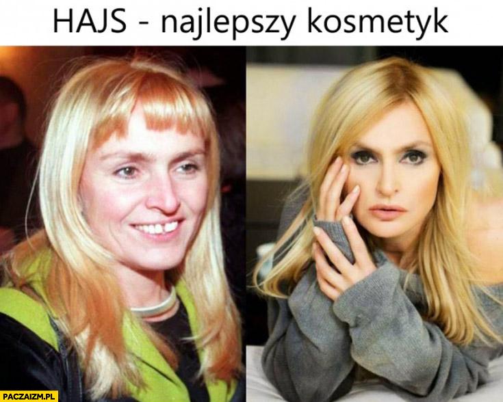 Hajs – najlepszy kosmetyk Monika Olejnik przed po
