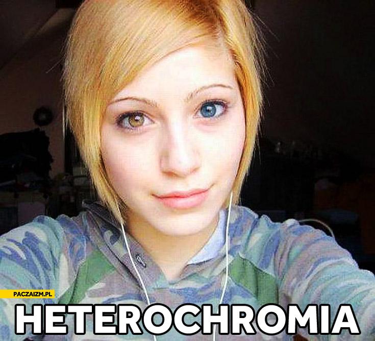 Heterochromia różnobarwne tęczowki