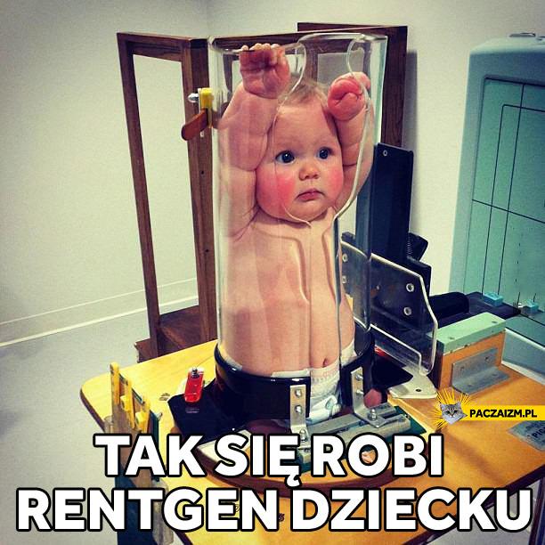 Jak się robi rentgen dziecku?