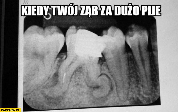Kiedy Twój ząb za dużo pije