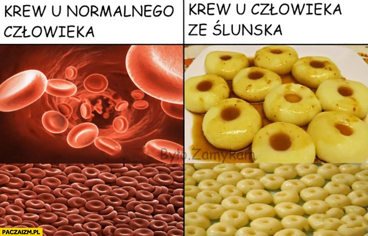 Krew u normalnego człowieka krew u człowieka ze Śląska kluski Śląskie