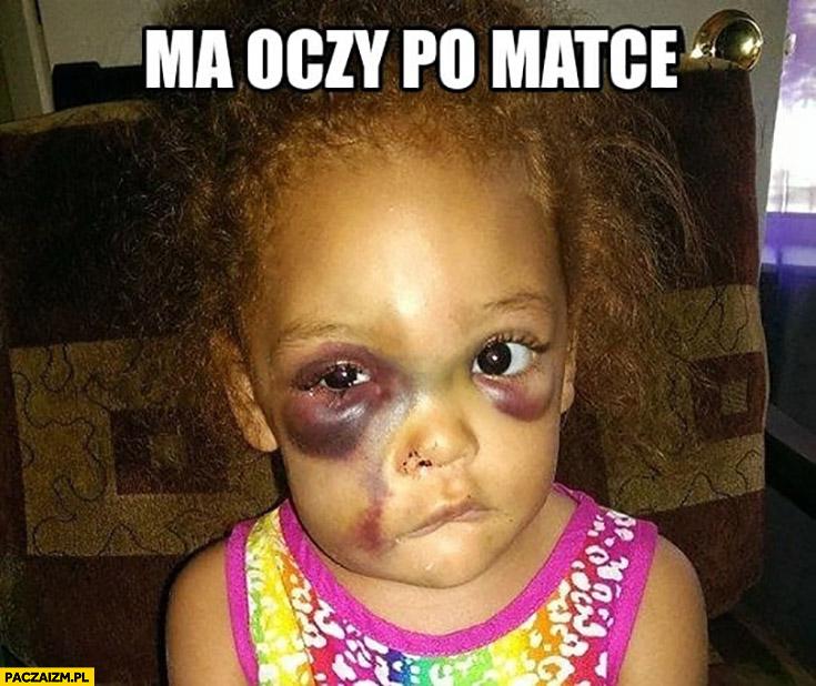 Ma oczy po matce dziewczynka z siniakami pod oczami