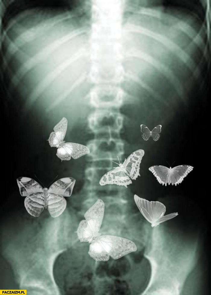 Motyle w brzuchu prześwietlenie
