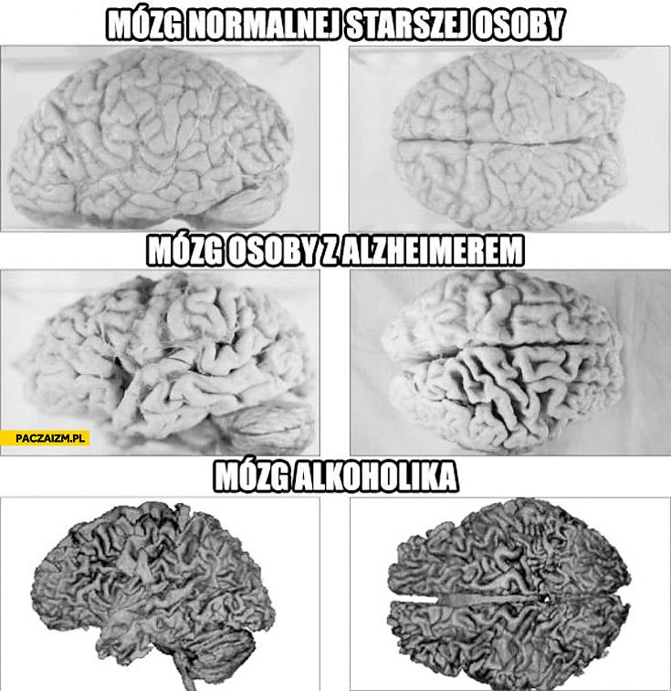 Mózg alkoholika alzheimer