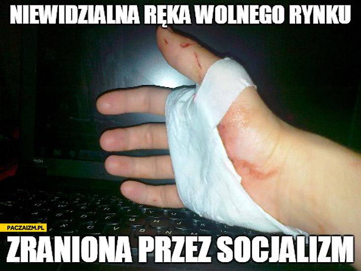 Niewidzialna ręka wolnego rynku zraniona przez socjalizm