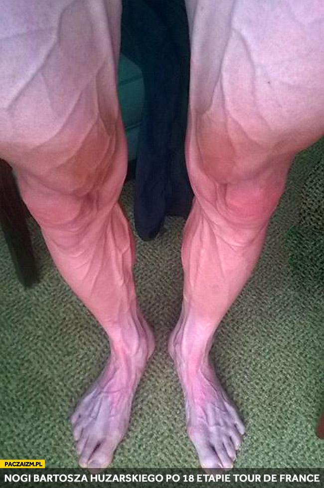 Nogi Bartosza Huzarskiego po 18 etapie Tour de France
