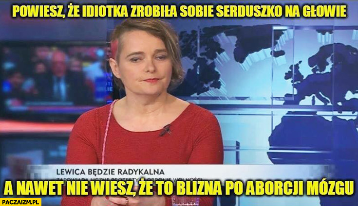 Powiesz, że idiotka zrobiła sobie serduszko na głowie a nawet nie wiesz ze to blizna po aborcji mózgu Anna Zawadzka