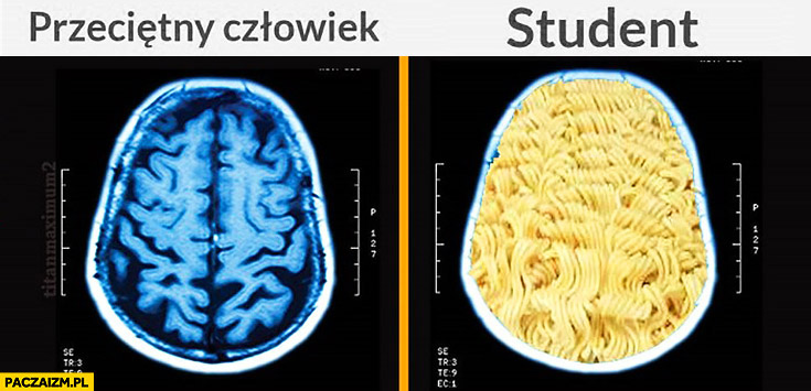 Przeciętny człowiek vs student makaron rezonans skan mózgu