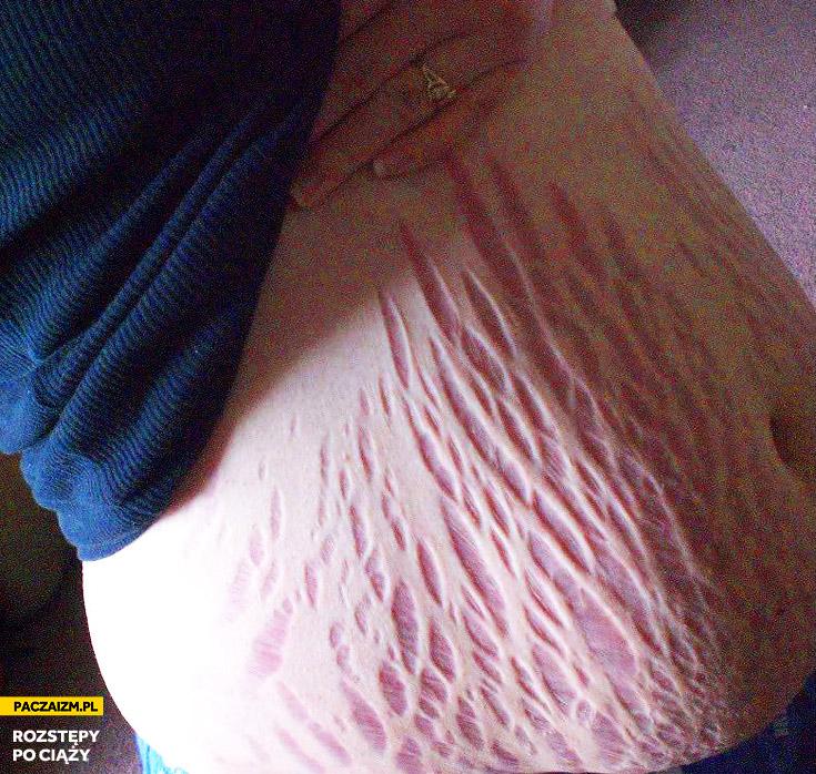 Rozstępy po ciąży na brzuchu
