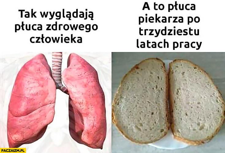Tak wyglądają płuca zdrowego człowieka, a to płuca piekarza po trzydziestu latach pracy chleb